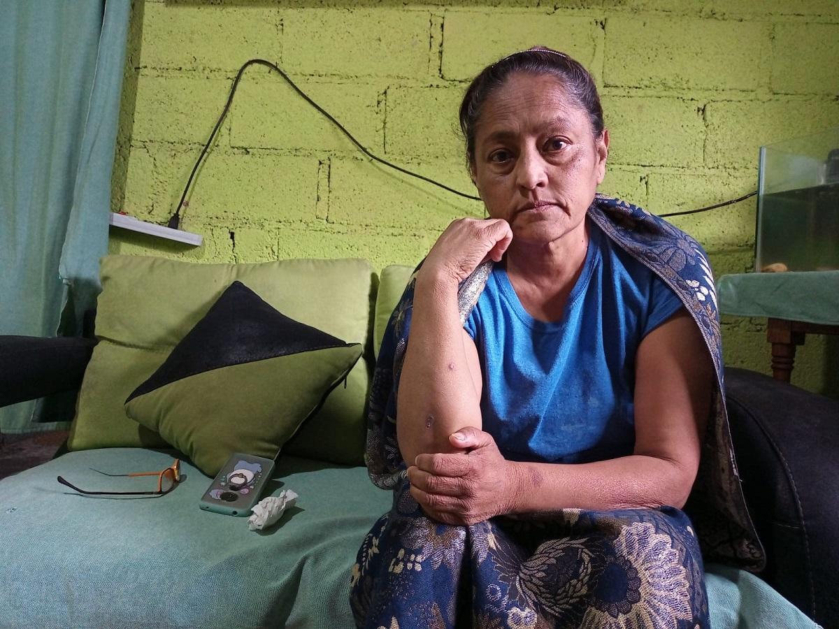 La mujer padece desde hace 14 años la enfermedad